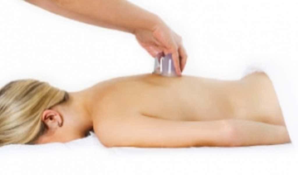 Cupping massage Huizen